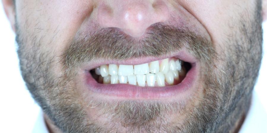 tingling teeth anxiety