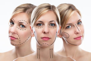 psychological effects of plastic surgery in patients life