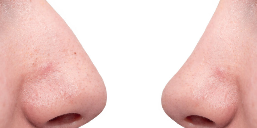 rhinoplasty tip refinement