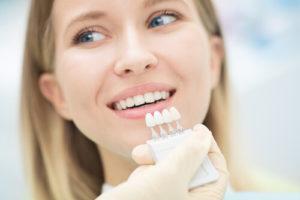 teeth whitening veneers