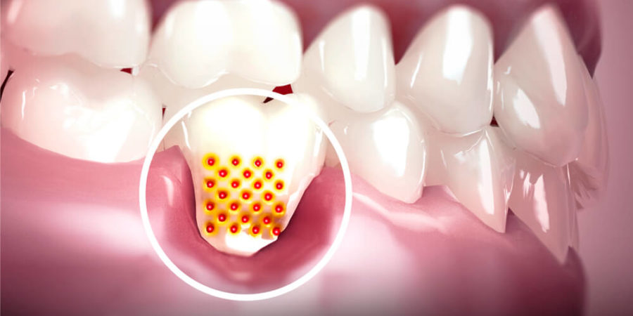 Is it Possible To Get Teeth Whitening For Sensitive Teeth